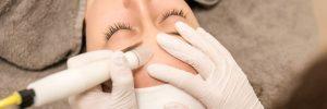 Microdermabrasie | DermaCare Skinclinic Weert