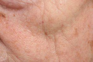 Huidveroudering   DermaCare Skinclinic Weert