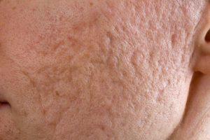Littekens   DermaCare Skinclinic Weert