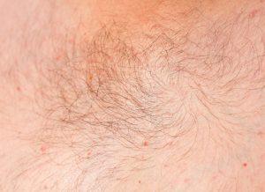 Overbeharing | DermaCare Skinclinic Weert