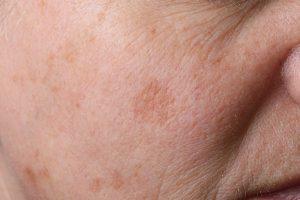 Pigment | DermaCare Skinclinic Weert