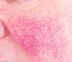 Rosacea   DermaCare Skinclinic Weert